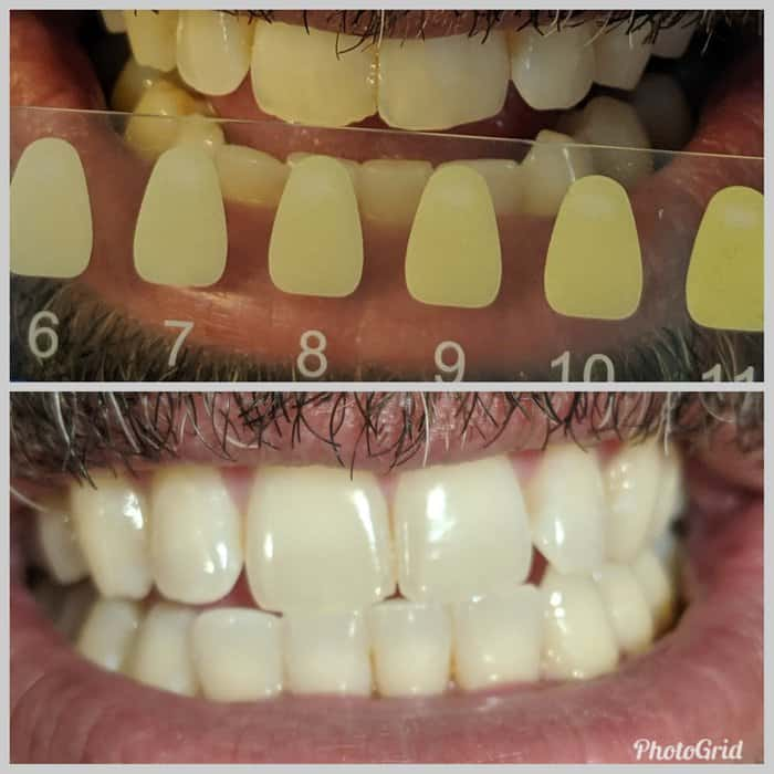 WYT whitening before and afters