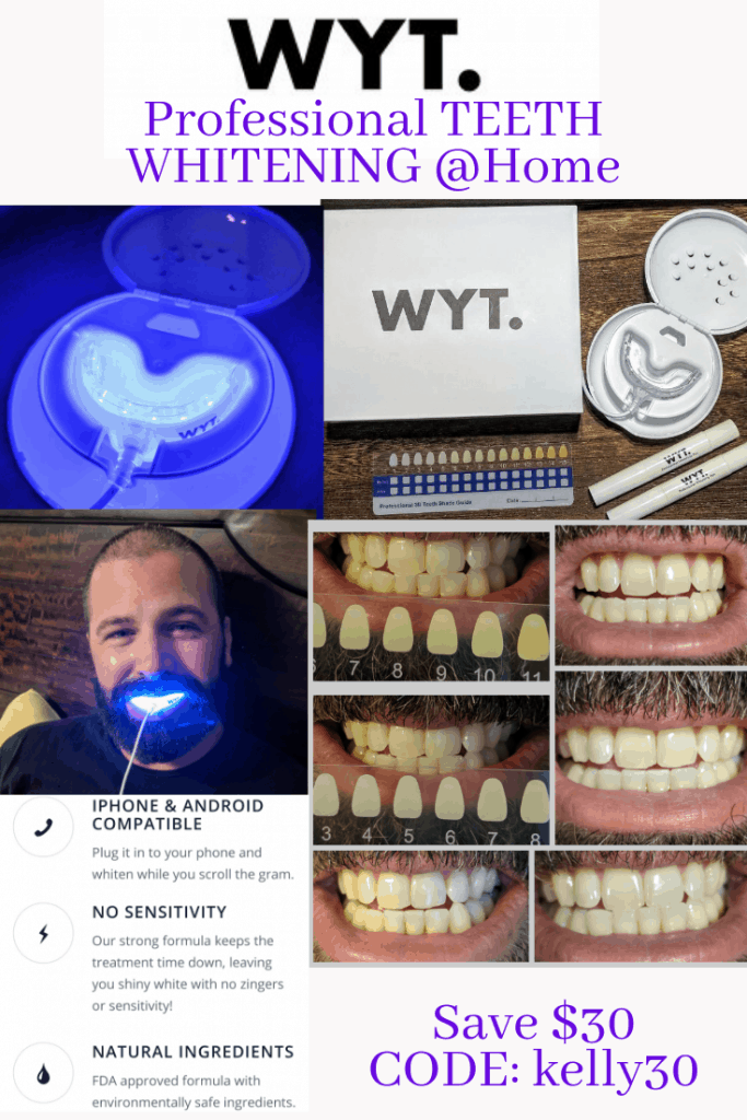 wyt smile professional teeth whitening system