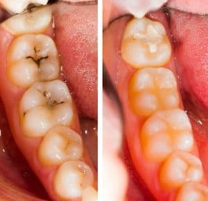 Before and after cavity filling