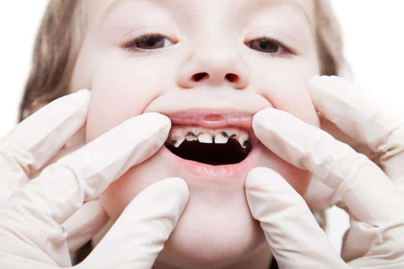 Tooth decay in kids silver diamine fluoride