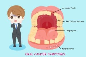 Oral cancer symptoms mouth cancer symptoms pictures of mouth cancer