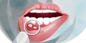 mouth ulcer causes