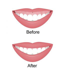 Gummy smile treatment gummy smile surgery