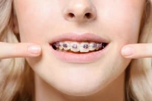 dental rubber bands elastics