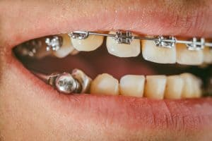 Herbst orthodontic appliance guide