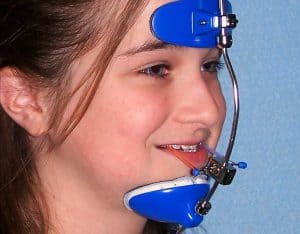 facemask orthodontic appliance