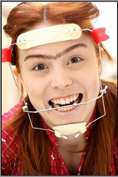 orthodontic headgear for braces
