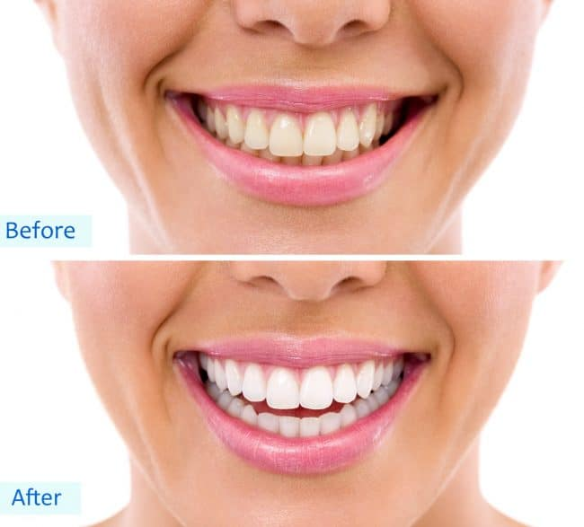 Best Teeth Whitening Products Of 2020 By A Dental Hygienist