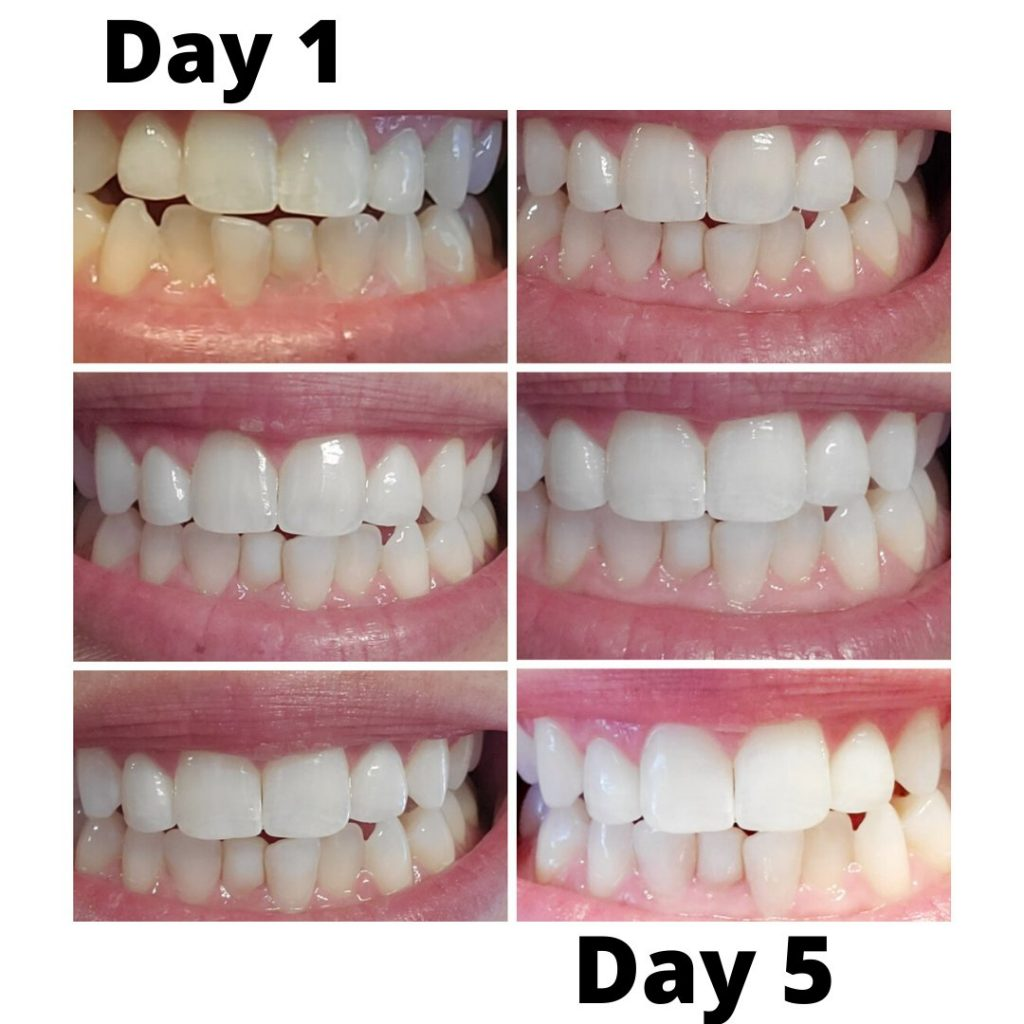 snow teeth whitening before and after pictures