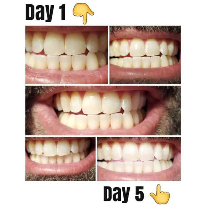 Lumineux before and after pictures of teeth whitening