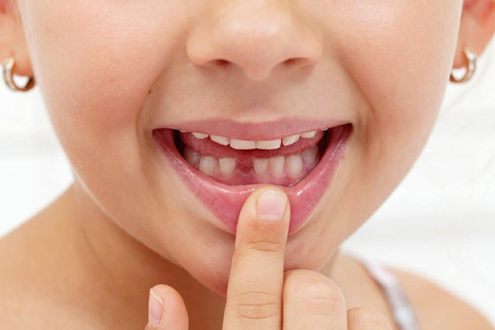 How to pull a loose baby tooth?